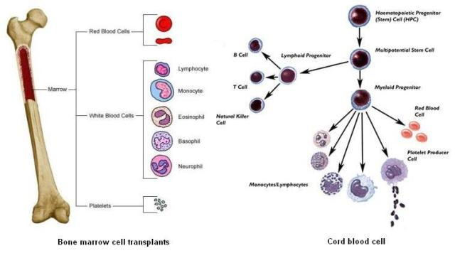 Comparison between cord blood cell and bone marrow cell transplants